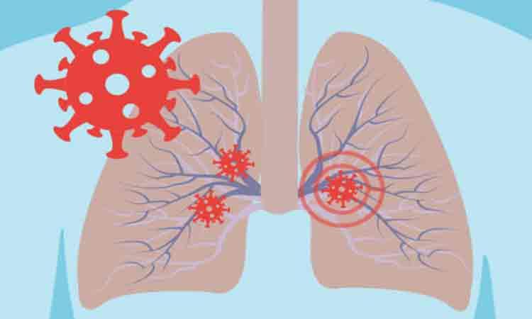 Ce se intampla cu organismul cand te infectezi cu coronavirus! Specialistii explica simptomele COVID-19