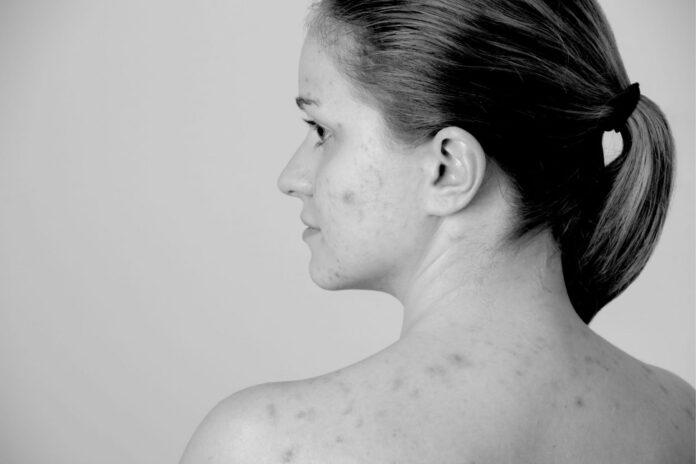 Remedii vechi pentru diverse probleme ale pielii. Negi, alunite,furuncul, arsuri…